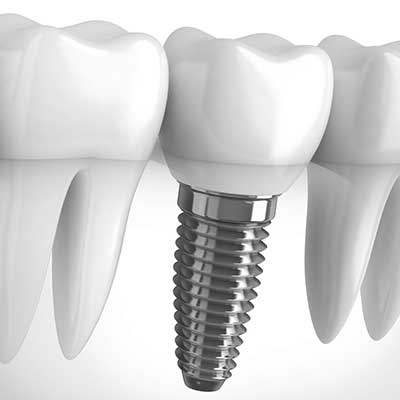 dental-implant-img-400px